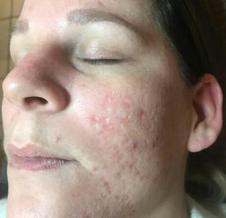 wangen-acne na