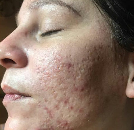 wangen-acne voor